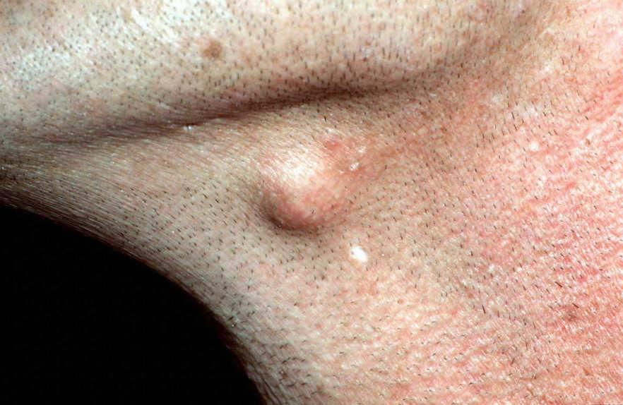 Причины появления и лечение просянки (милии, белые угри, жировики)