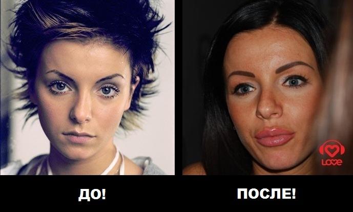 Российские звезды, которые пожалели, что делали пластические операции