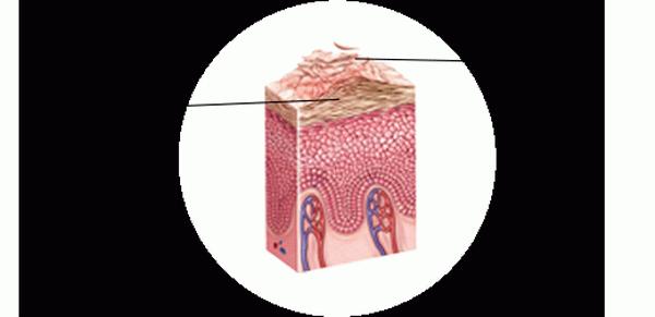 Сухость кожи лица – признаки и подходящий уход