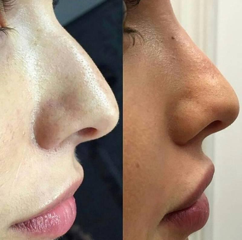 Ринопластика без операции изменит форму носа