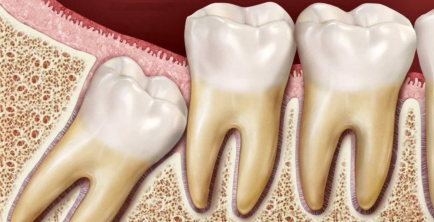 Нужно ли удалять зубы мудрости: зачем и в каких случаях удаляют