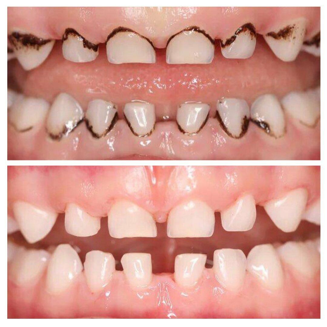 Почему у ребенка на зубах появляется черный налет и как от него избавиться