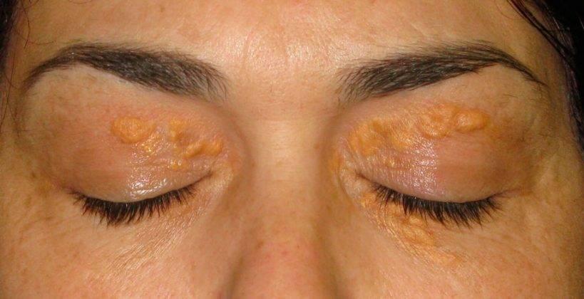 Виды наростов на теле человека. фото новообразований на коже, и доброкачественные опухоли