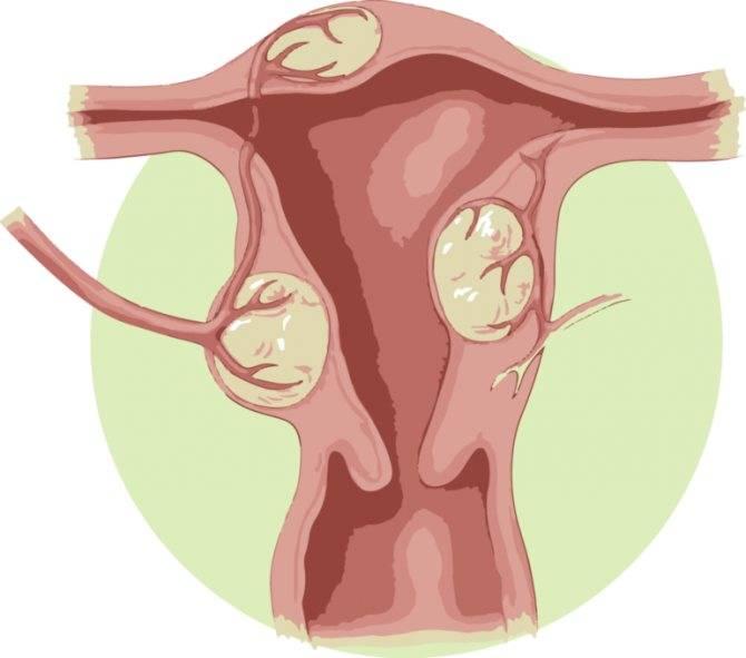 Гомеопатические препараты при лечении миомы матки