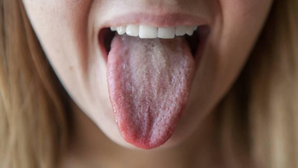 Жжение языка, неба, губ, горла. причины и лечение у взрослых народными средствами