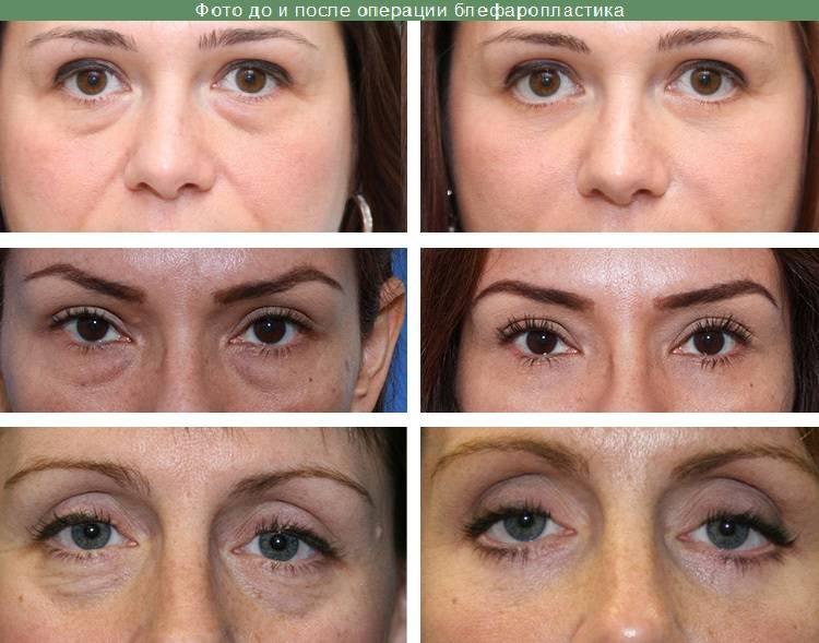 Биоревитализация вокруг глаз — гарантия свежего взгляда