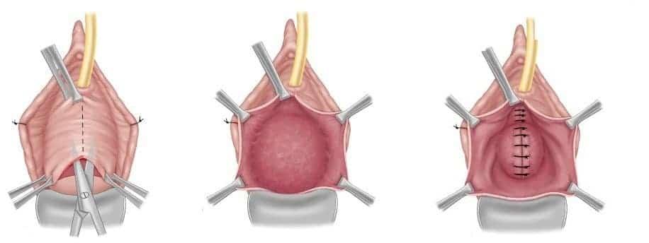 Интимная пластика влагалища. подготовка к операции и особенности послеоперационного периода