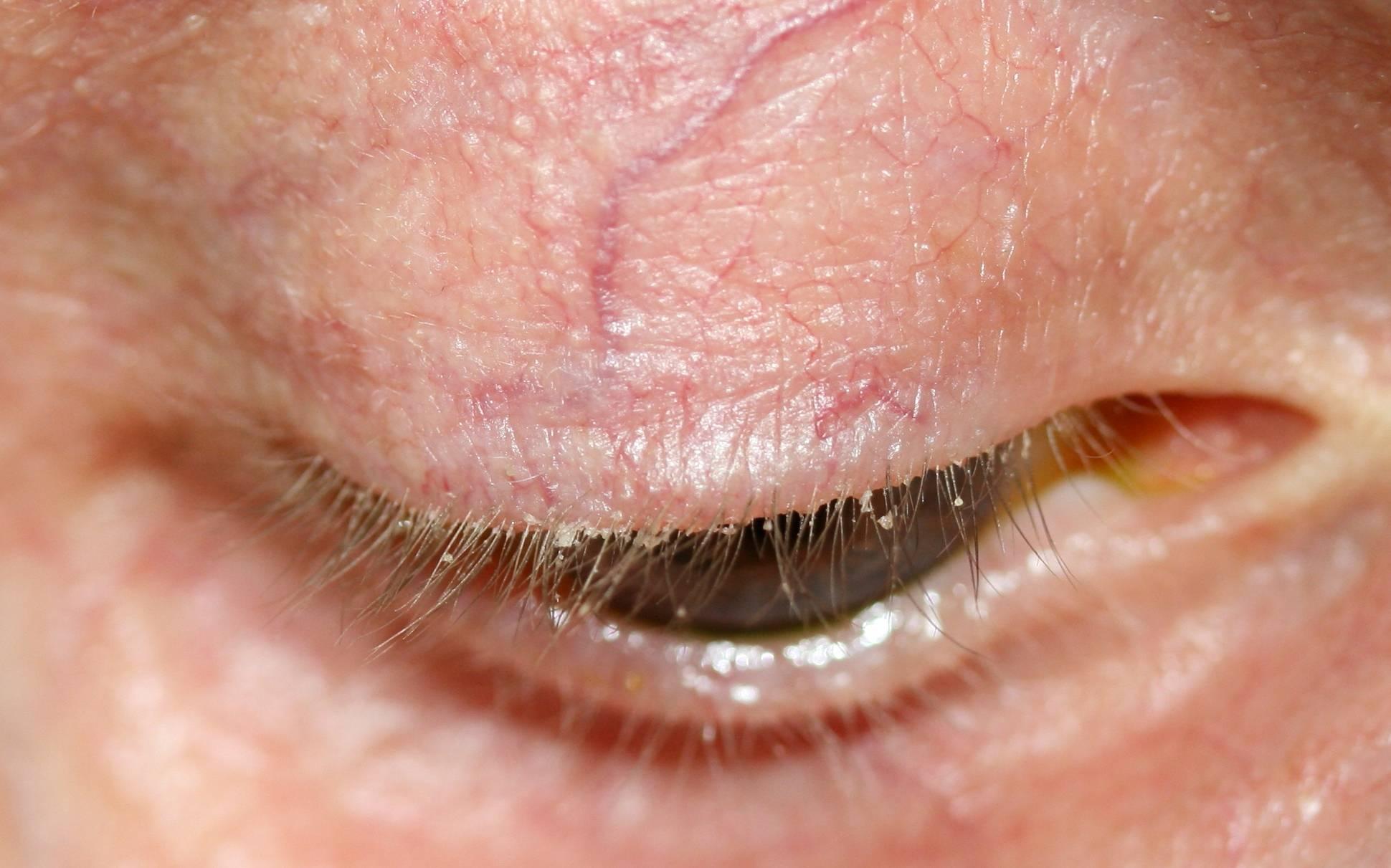 Шелушится кожа век глаз лечение у взрослых. почему шелушатся веки глаз. когда стоит обратиться к специалисту