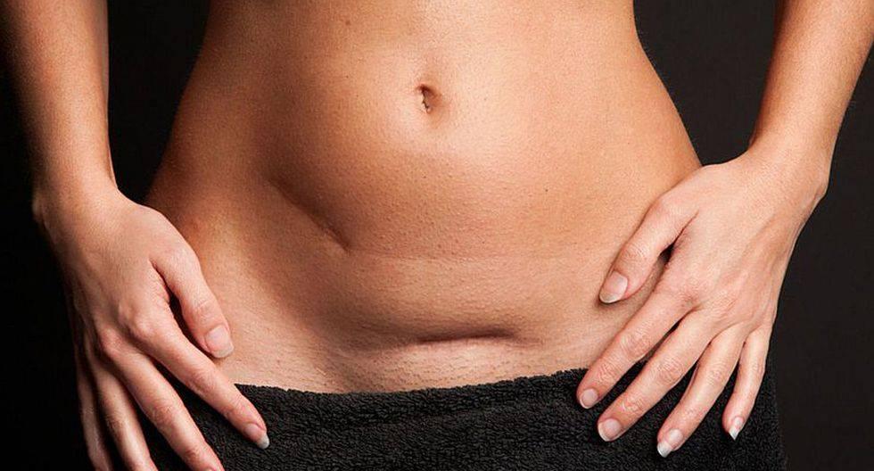Особенности родов у женщин с рубцом на матке
