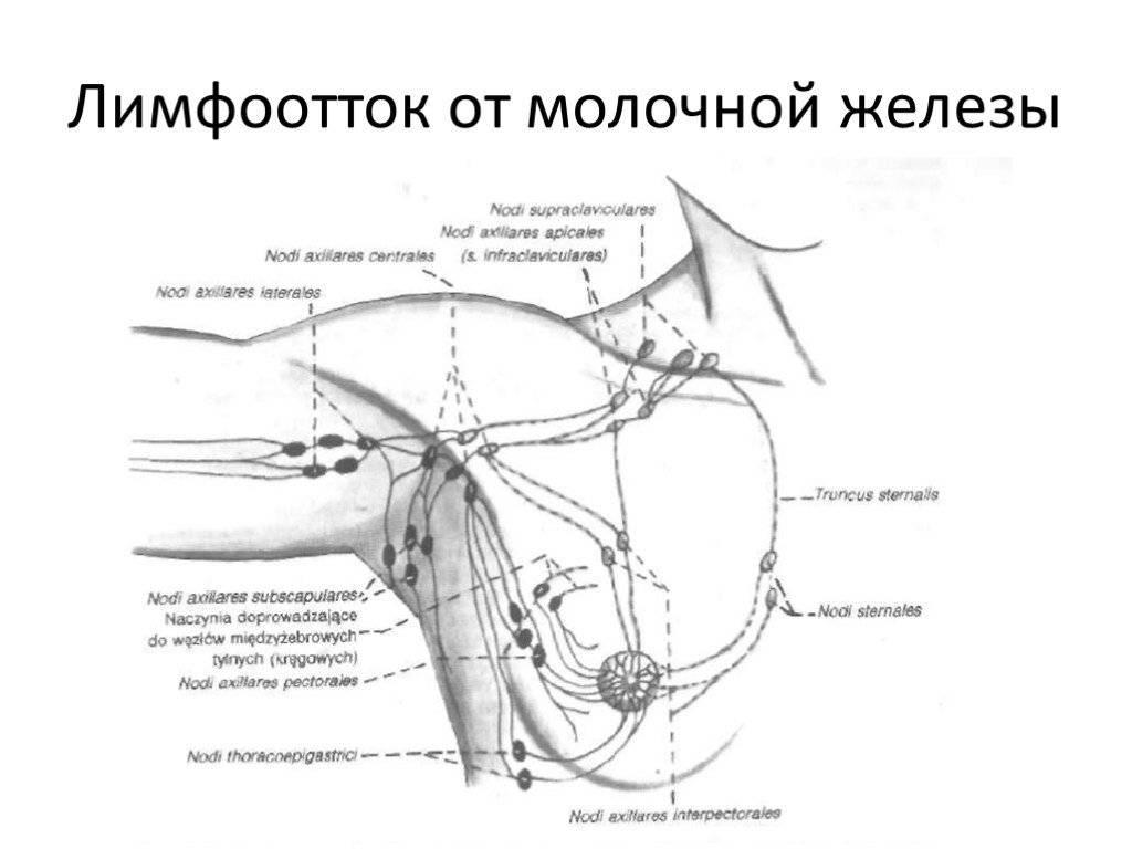 Лимфаденит аксиллярных лимфоузлов