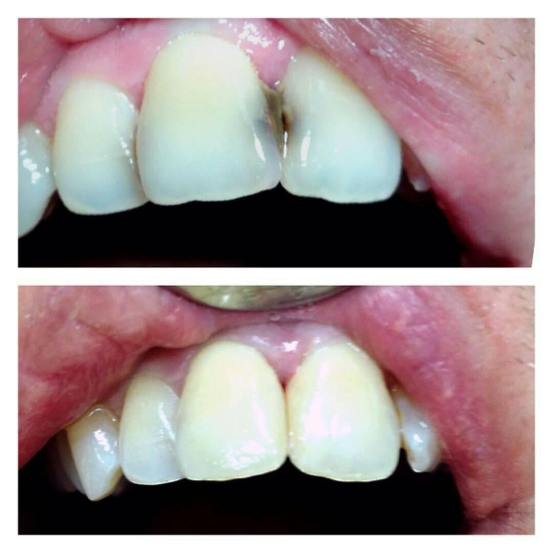 Как лечат кариес на передних зубах