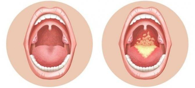 Важно не допустить развития патологий! кандидозный стоматит у ребенка: симптомы, причины, лечение