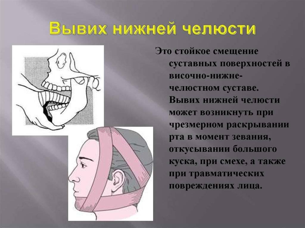 Подвывих нижней челюсти симптомы лечение