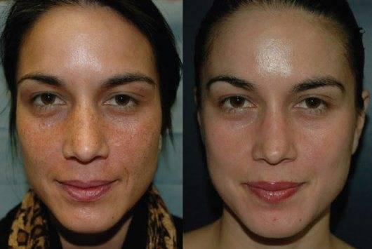 Фитиновый пилинг: боремся с пигментацией кожи