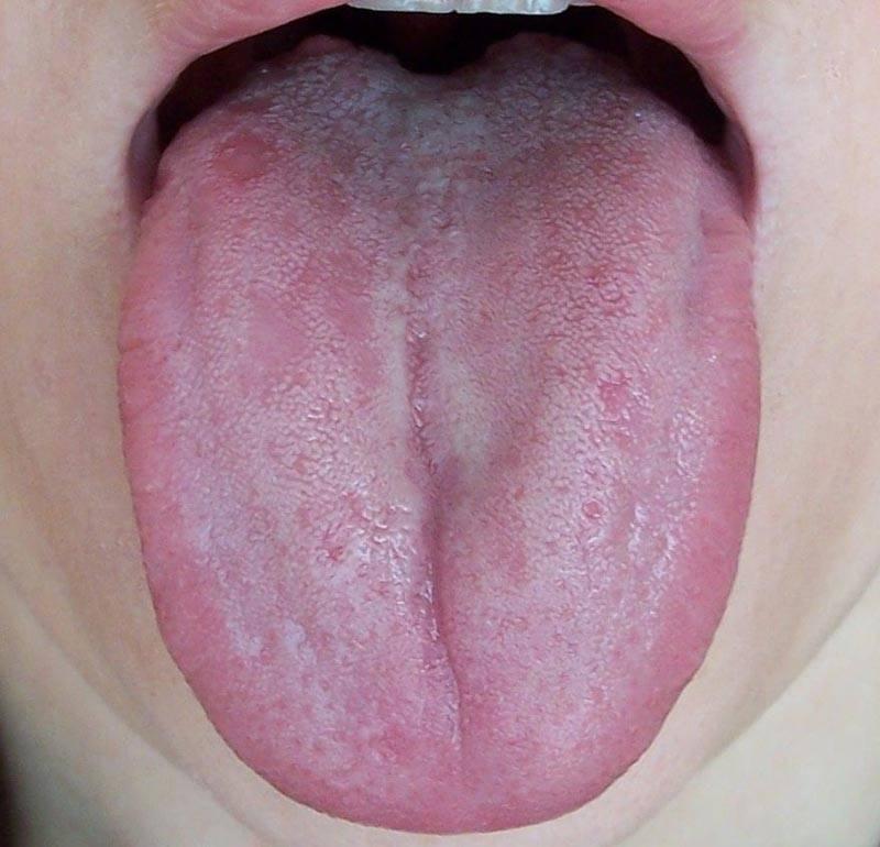Глоссит: симптомы и лечение