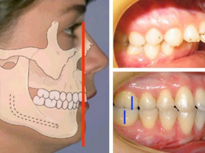 Аномалии развития и дефекты нижней челюсти : етиология, патогенез, классификация, клиника, диагностика, суть методов хирургического лечения и показания. - презентация