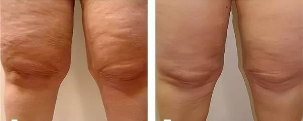Вакуумный массаж с rf-лифтингом — возможно ли омоложение за одну процедуру