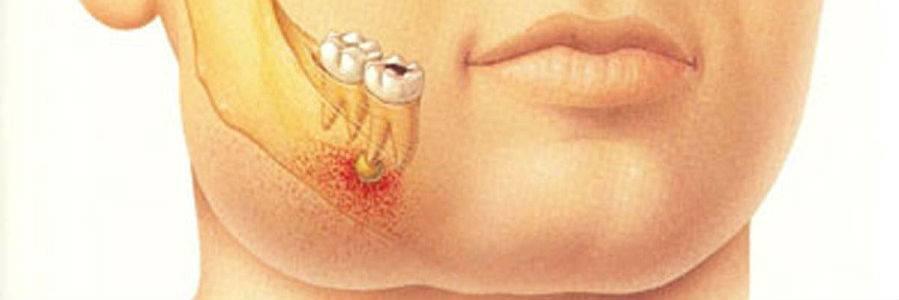 Онемение верхних зубов при имплантации