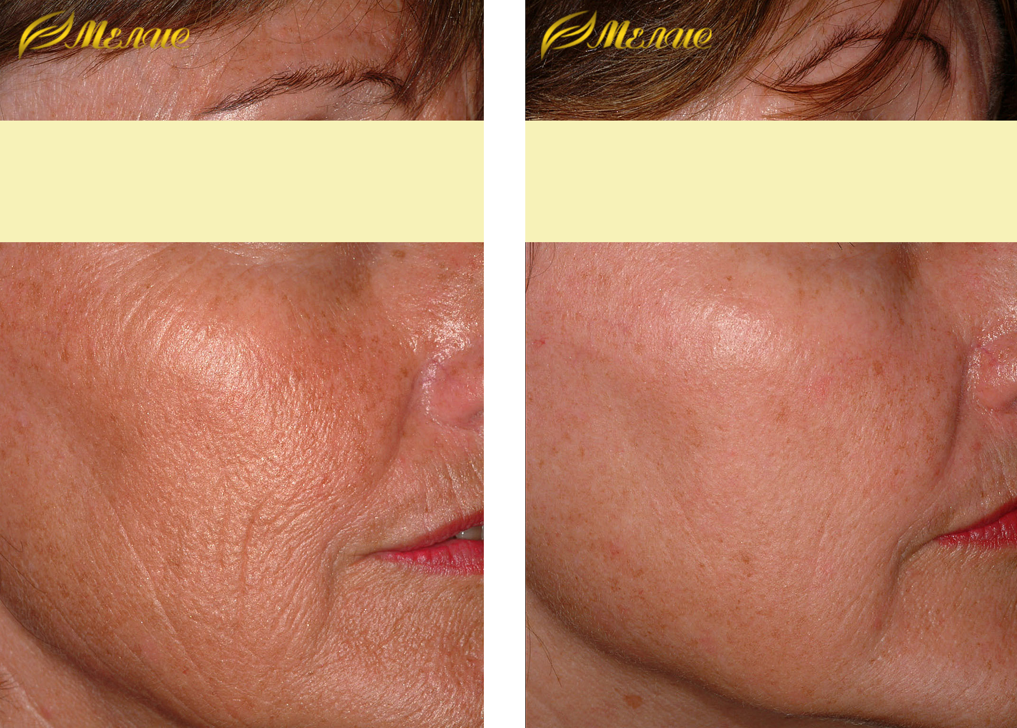 Что такое фотоомоложение лица, плюсы и минусы аппаратного воздействия на кожу