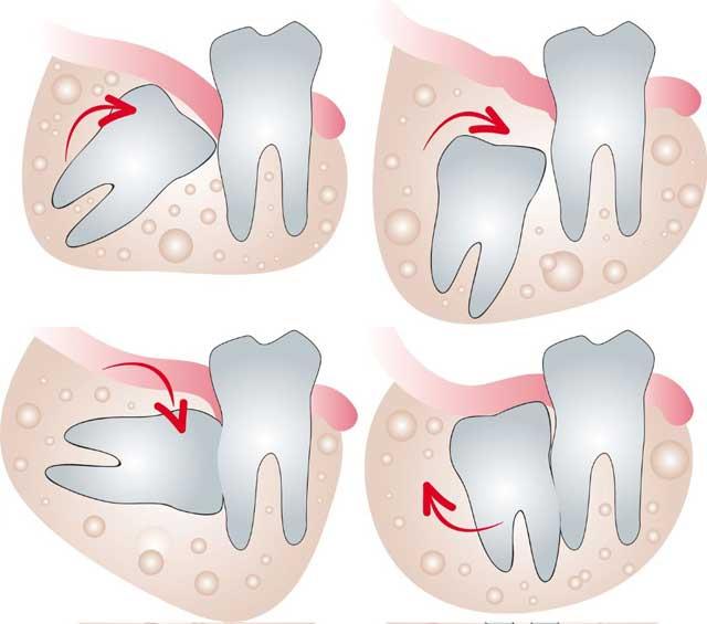 Что делать, если болит десна под зубом при нажатии. возможно, вам срочно требуется помощь стоматолога