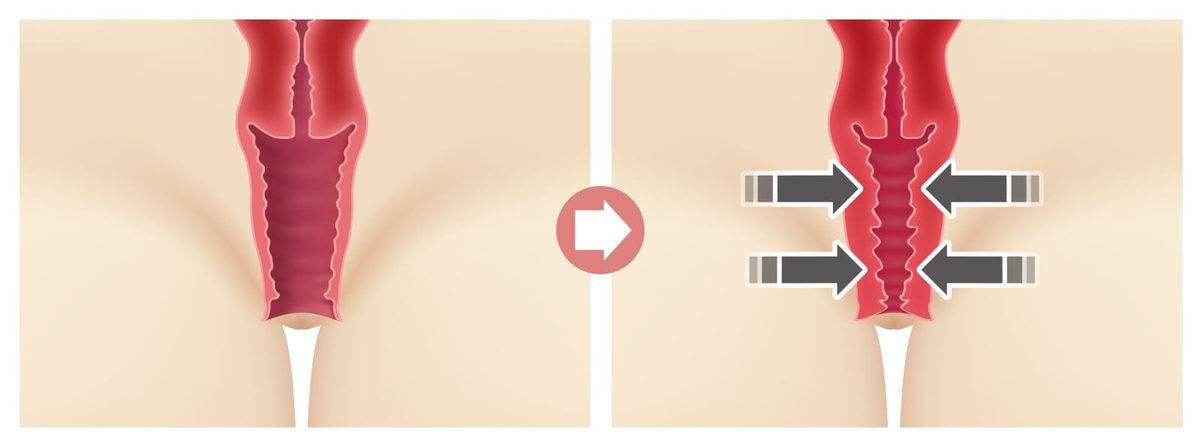 Виды операций при опущении шейки матки, отзывы пациентов