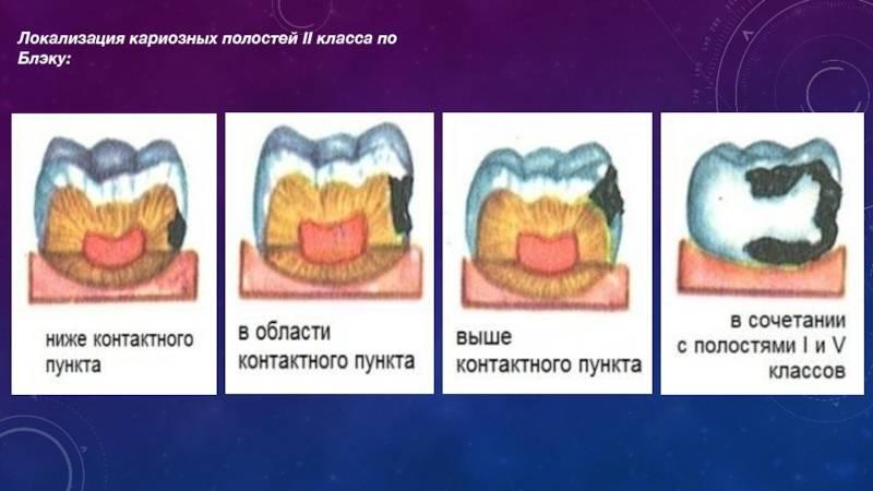 Классификация кариеса зубов по глубине поражения
