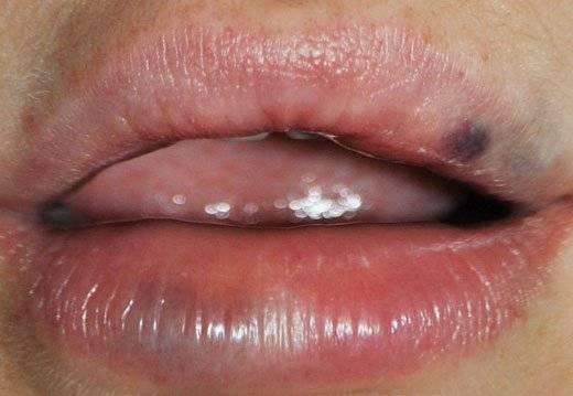 Почему на губе появляется темное пятно и как с ним бороться