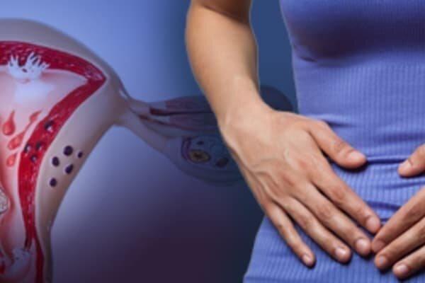 Фоновые и предраковые заболевания шейки матки