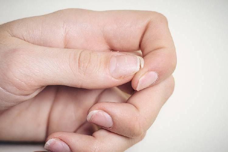 Что делать, когда сильно слоятся ногти?