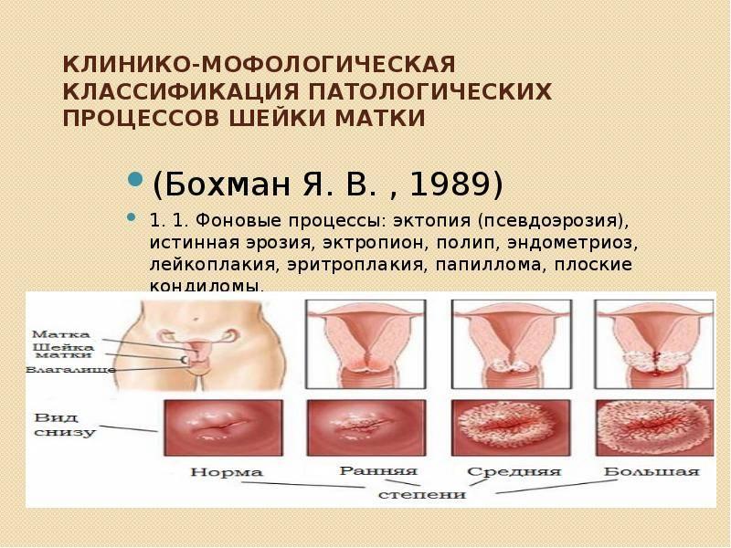 В чем опасность псевдоэрозии шейки матки: консультация врача с 20 летним стажем