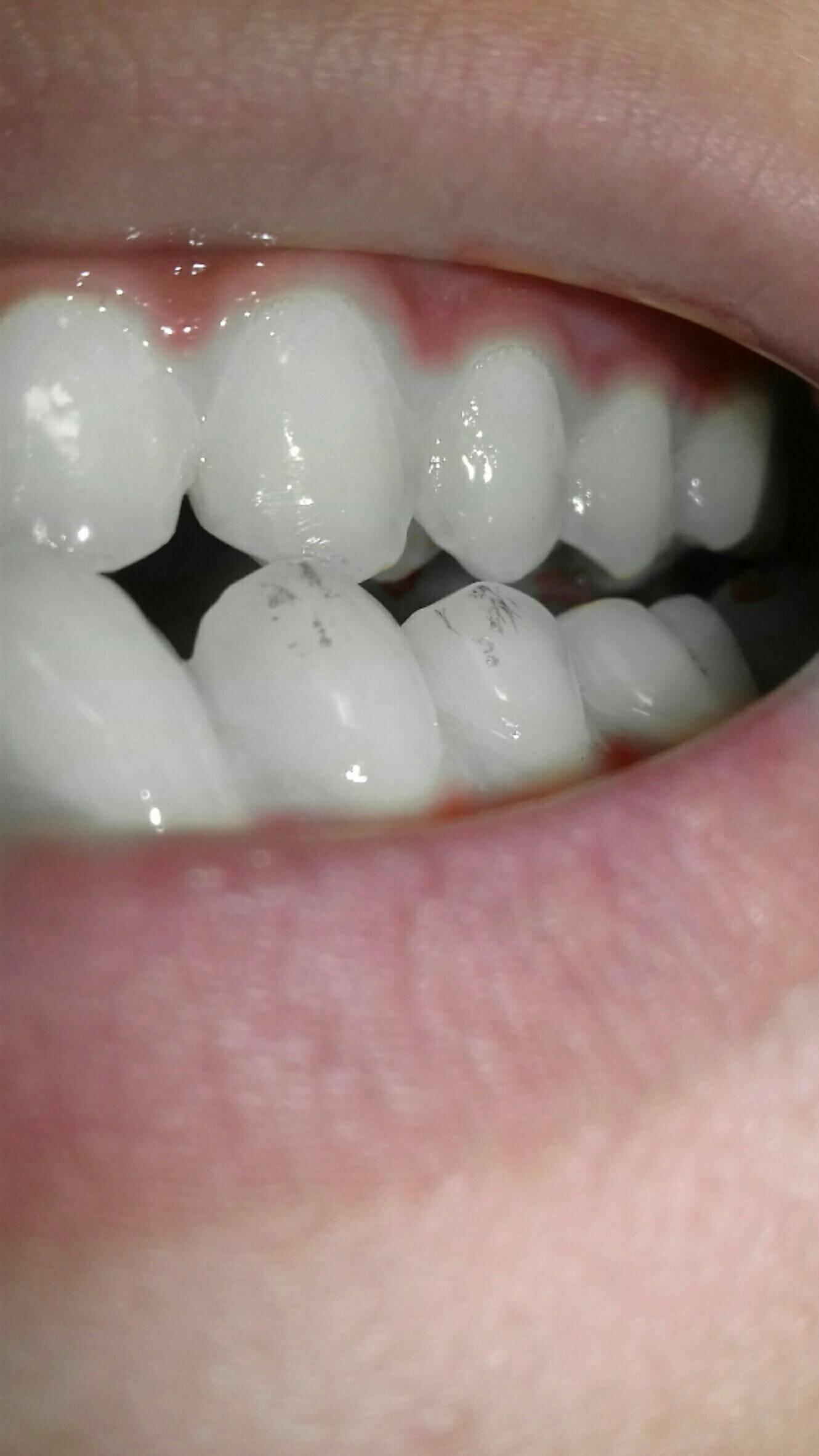 Желтые пятна на зубах у ребенка: фото, причины, как убрать?