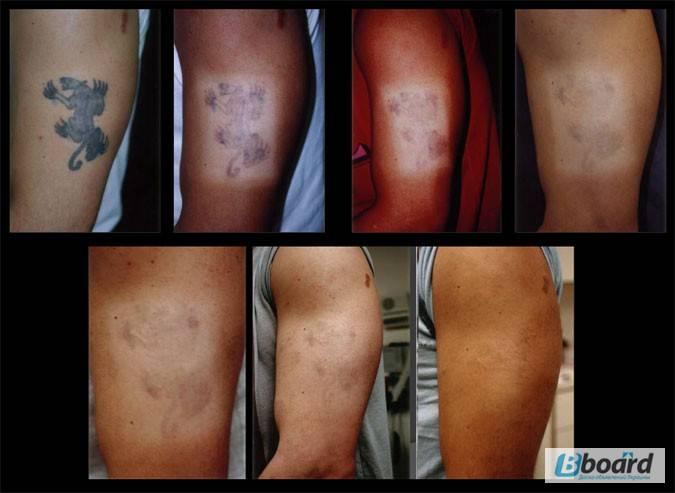 6 мифов об удалении татуировки лазером