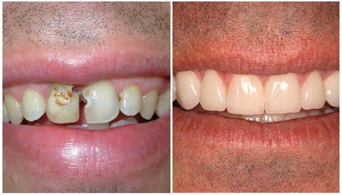 Качественное пломбирование зубов и каналов