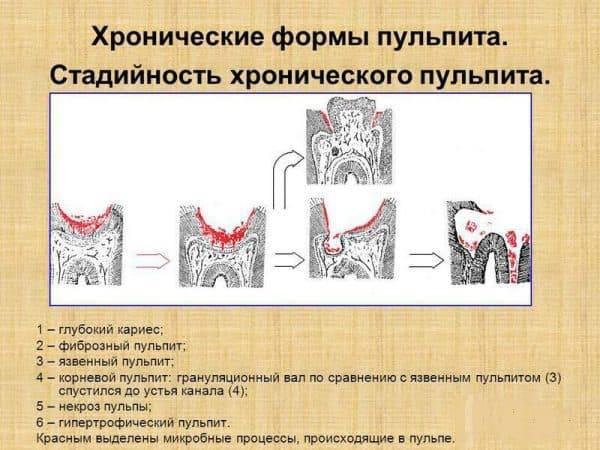 Причины хронического фиброзного пульпита и формы заболевания