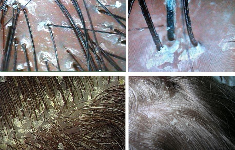 Всё об очищении кожи головы в салоне и дома: обзор средств и способов, полезные рецепты