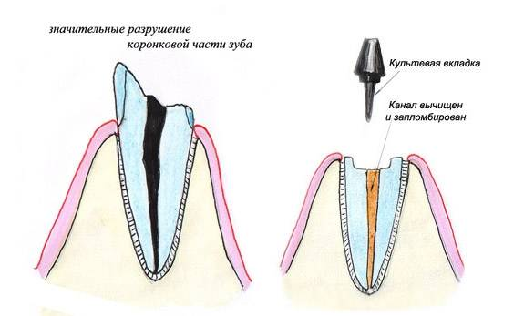 Для чего нужна вкладка на зуб под коронку