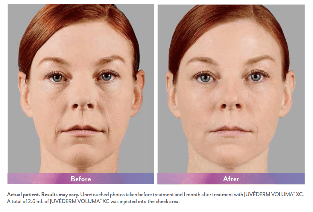 Филлер ювидерм: новая эра по улучшению и омоложению кожи (filler juvederm)