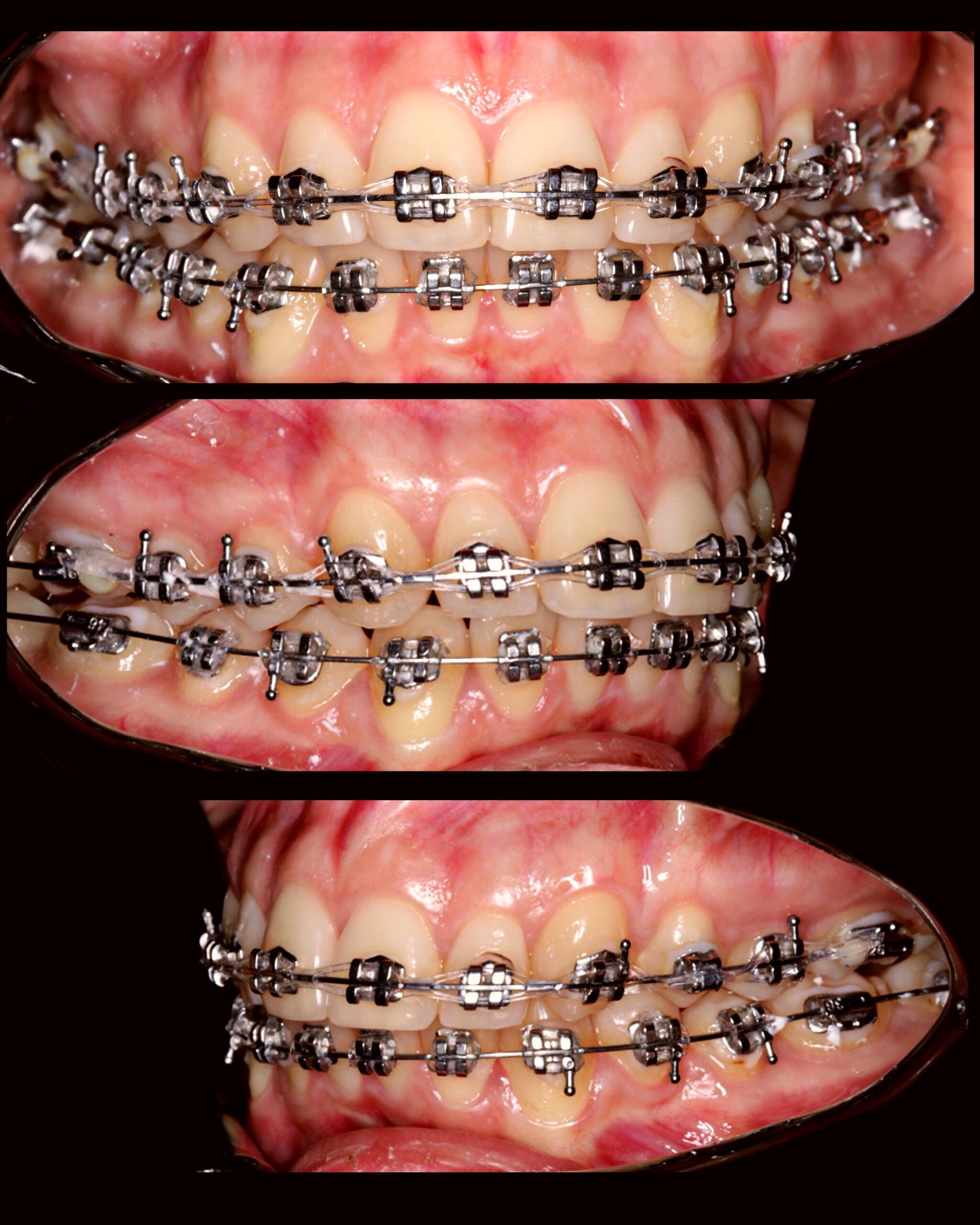 Уникальный модельный ряд брекетов от american orthodontics