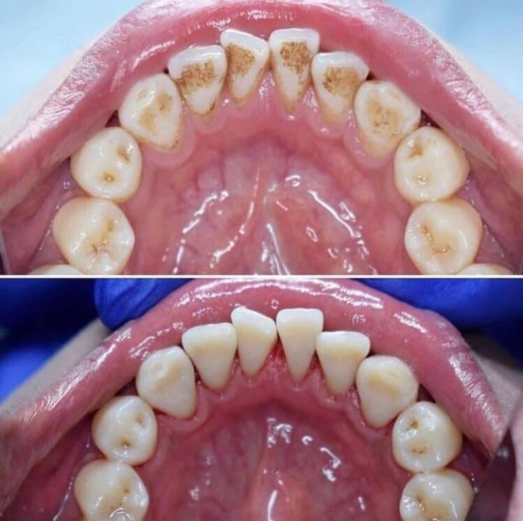 Удаление зубного камня ультразвуком, особенности и противопоказания