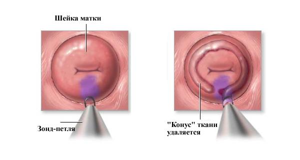 Радиоволновая конизация как метод терапии шейки матки