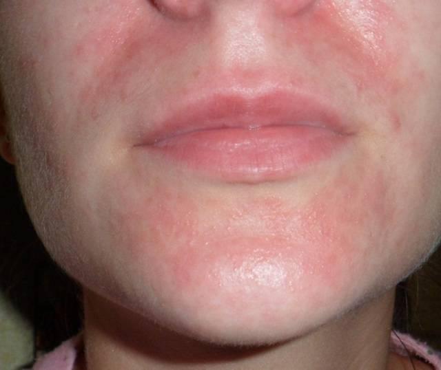 Аллергия на гиалуроновую кислоту – насколько она опасна?