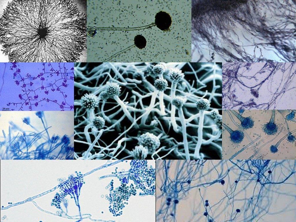 Что такое нити мицелия: причины, симптомы и лечение грибка