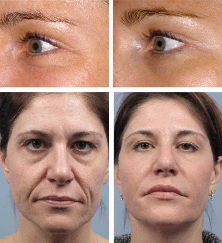 Плазмолифтинг – как часто делать можно плазмотерапию в косметологии