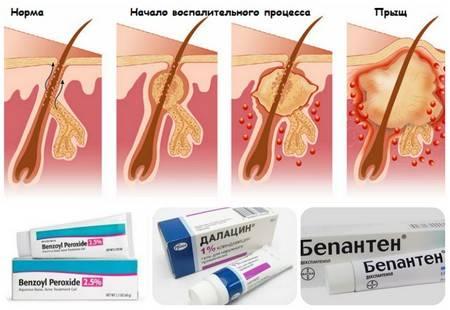 Фурункул в интимном месте или на половых органах