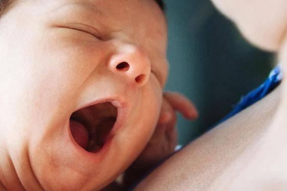 Мозоль на нижней губе у новорожденного