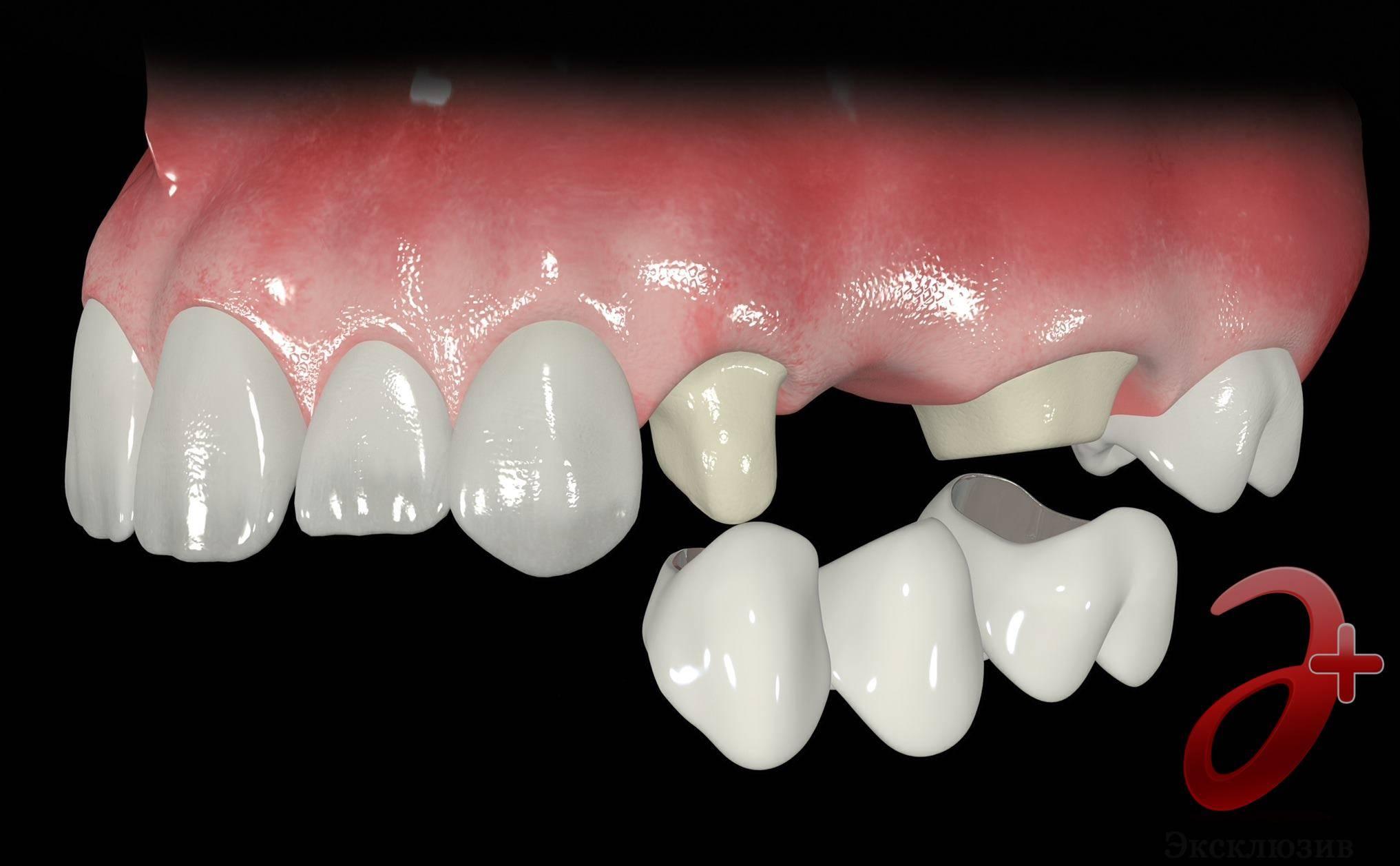 Как вставить зубы: выбор метода протезирования, особенности различных материалов