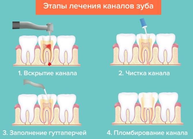 Сколько каналов в зубе?