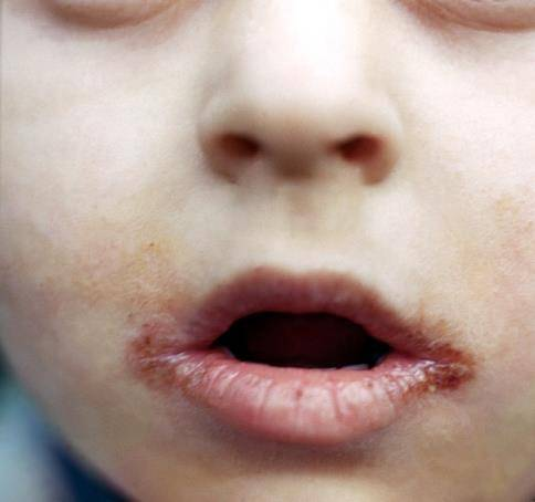 Как лечить заеды в уголках рта