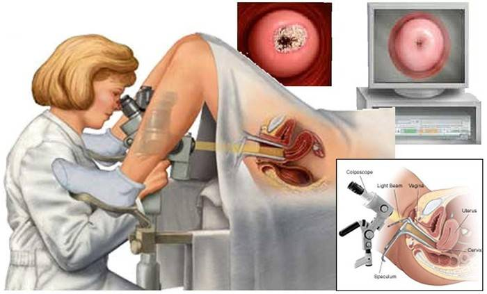 Кольпоскопия: можно ли делать ее при беременности, зачем назначают процедуру?