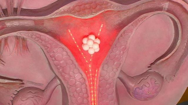 Как проходит менструация при маточной миоме